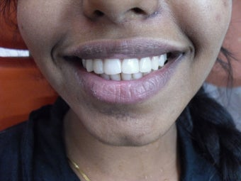A 17 year old girl treated conservatively and esthetically for fractured front teeth after 919721