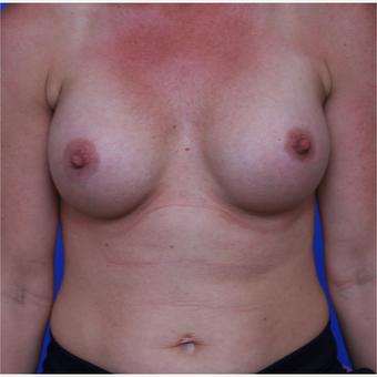 33-year old woman treated with Breast Augmentation after 3123932
