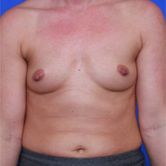 33-year old woman treated with Breast Augmentation before 3123932