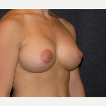 18 - 24 year old woman treated with Breast Augmentation after 3455449