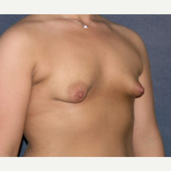 18 - 24 year old woman treated with Breast Augmentation before 3455449