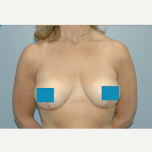 45-54 year old woman treated with Breast Lift after 3374849