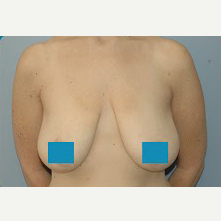 45-54 year old woman treated with Breast Lift before 3374849