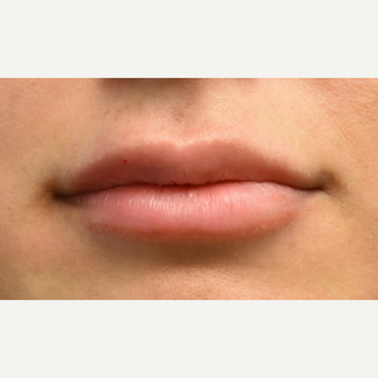 18-24 year old woman treated with Lip Augmentation before 3749617