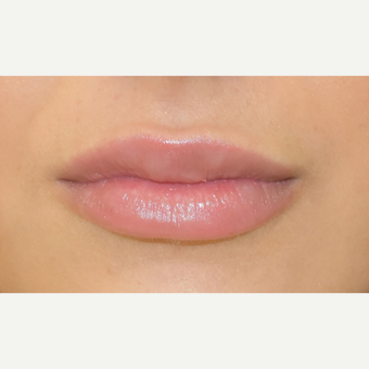 18-24 year old woman treated with Lip Augmentation after 3749617