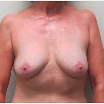 Breast Fat Transfer or Natural Breast Augmentation for this 54 Year Old Woman after 2997995