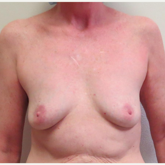Breast Fat Transfer or Natural Breast Augmentation for this 54 Year Old Woman before 2997995