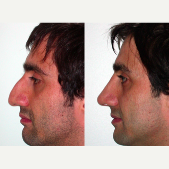 25-34 year old man treated with Rhinoplasty after 3521637