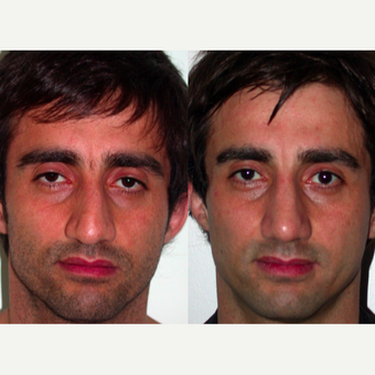 25-34 year old man treated with Rhinoplasty before 3521637