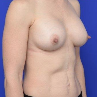 33 year old woman treated with Breast Augmentation after 3670148