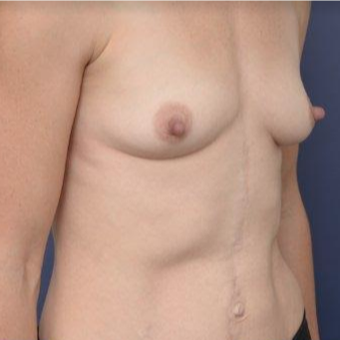 33 year old woman treated with Breast Augmentation before 3670148