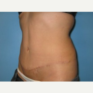 Tummy Tuck after 3665577