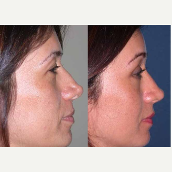 45-54 year old woman treated with Forehead Lift after 3603222
