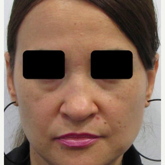 40 year old woman treated with Rhinoplasty before 3438012