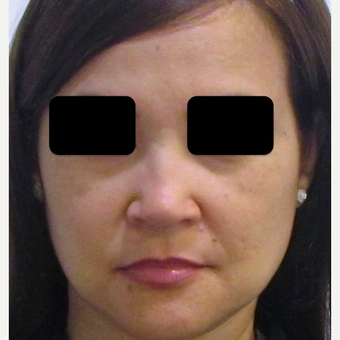 40 year old woman treated with Rhinoplasty after 3438012