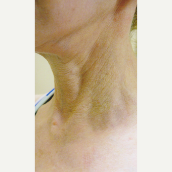 61 year old woman treated with Fraxel Laser before 3055534