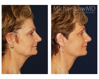 Cheek Augmentation before 1324868