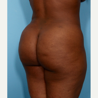 35-44 year old woman treated with Brazilian Butt Lift after 3487375
