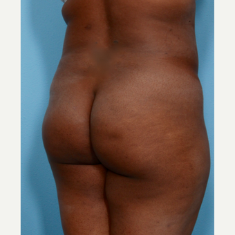35-44 year old woman treated with Brazilian Butt Lift before 3487375