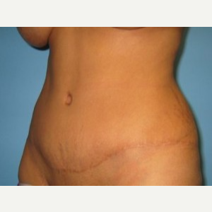 Tummy Tuck after 3665618