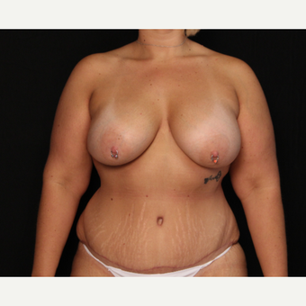 33 year old female with bilateral submuscular silicone implants placed through the underarm after 3576141