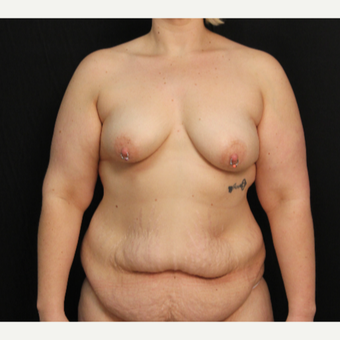 33 year old female with bilateral submuscular silicone implants placed through the underarm before 3576141