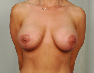41 year old woman treated with Mommy Makeover: Breast Lift with Implant after 3026515
