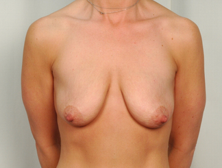 41 year old woman treated with Mommy Makeover: Breast Lift with Implant before 3026515