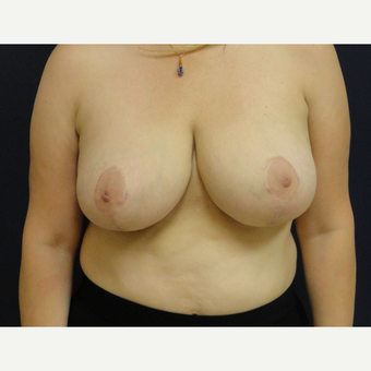 45-54 year old woman treated with Breast Reduction after 3069723