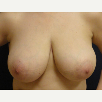 45-54 year old woman treated with Breast Reduction before 3069723