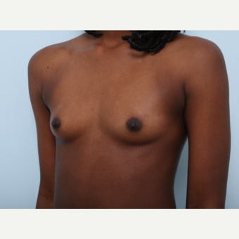 Breast Augmentation before 3508118
