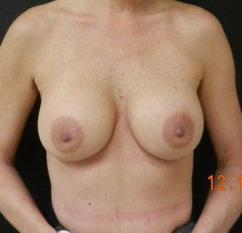 Silicone Breast Augmentation after 935752