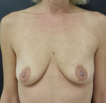 Silicone Breast Augmentation before 935752