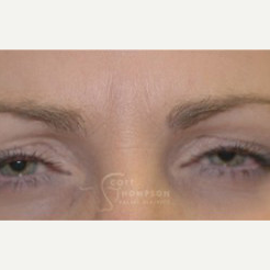 35-44 year old woman treated with Botox after 3458212