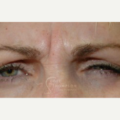 35-44 year old woman treated with Botox before 3458212