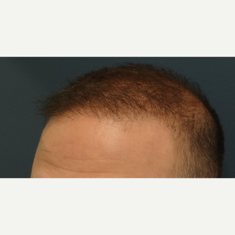 25-34 year old man treated with Hair Transplant after 3066697