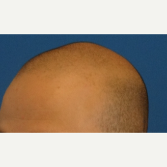 25-34 year old man treated with Hair Transplant before 3066697