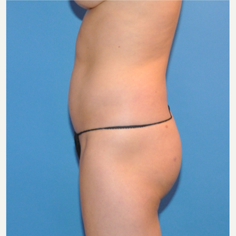 Liposuction of the abdomen and waist before 3530713