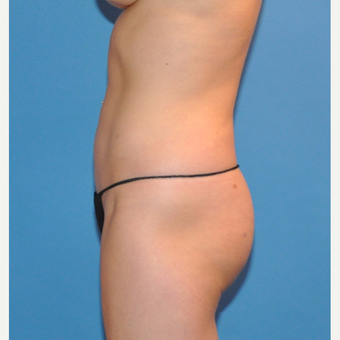Liposuction of the abdomen and waist after 3530713