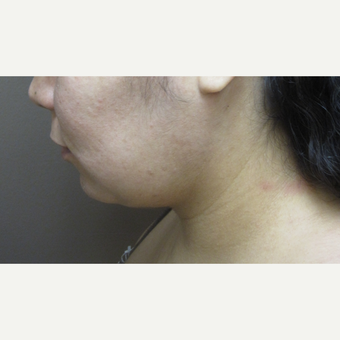 35-44 year old woman treated with Neck Lift after 3260155