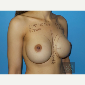 35-44 year old woman treated with Breast Implant Revision before 3094440