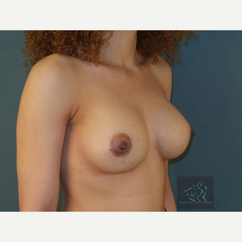 35-44 year old woman treated with Breast Implant Revision after 3094440