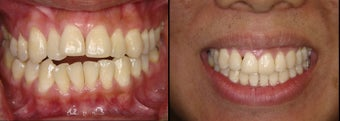 Braces to treat openbite and crowding before 1136591