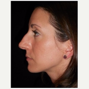 25-34 year old woman treated with Rhinoplasty before 3047048