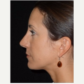 25-34 year old woman treated with Rhinoplasty after 3047048