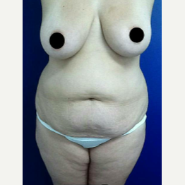 35-44 year old woman treated with Tummy Tuck before 3045306