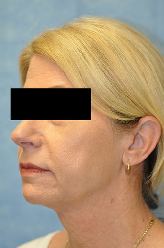 57 Year Old Female Treated for Skin Laxity of the Neck
