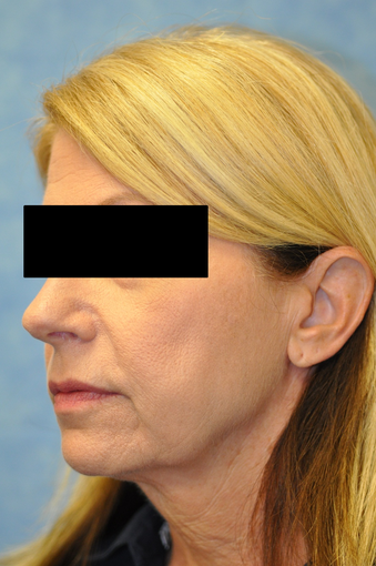 57 Year Old Female Treated for Skin Laxity of the Neck before 1017387