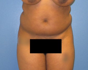 25-34 year old woman treated with Liposuction before 3855270