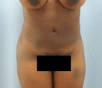 25-34 year old woman treated with Liposuction after 3855270